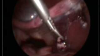 Остановка кровотечения при лапароскопии у кошки
