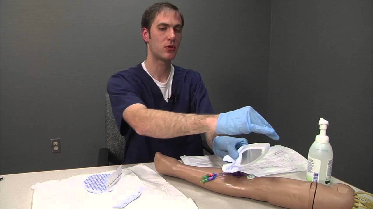 Sorbaview Oval Dressing Change - Mayo Clinic Patient Education