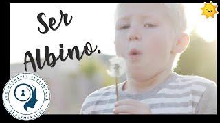 Ser Albino Totalmente Sano 💪🏻🙂💯