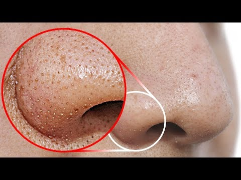 do-this-to-remove-blackheads-from-your-nose