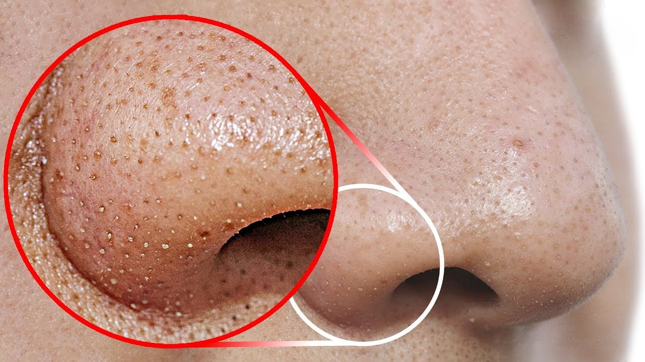 Do THIS to Remove Blackheads From Your Nose - YouTube