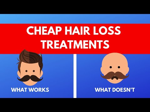Cheap Hair Loss Treatments: Doctor Reveals What Works and What Doesn't