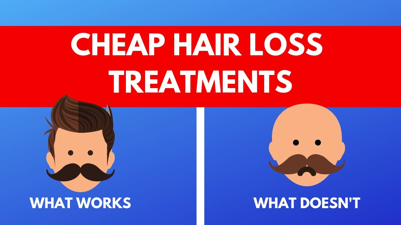 Two cheap hair loss treatment options for men that really