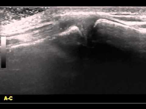 Valutazione Articolazione Acromion-Clavicolare