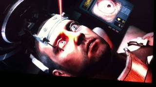 Dead Space 2: Laser Eye Surgery Goes Wrong (In HD)