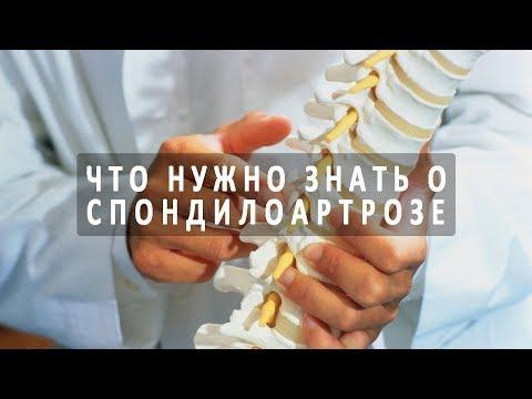 Остеохондроз: лечение, симптомы, причины, что это такое