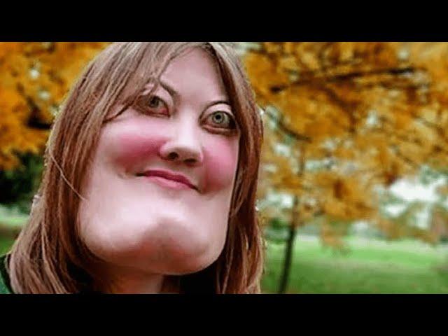 سخروا من هذه الفتاة بسبب وجهها الغريب ، ولكن بعد مرور 10 سنوات جعلتهم يندمون !
