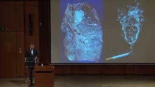 Biopsie Liquide Et Cancer Du Poumon : Du Mythe à La Réalité