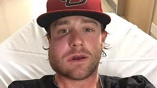 Diamondbacks Pitcher Takes 115 MPH Hit to His Face
