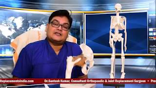 Hip Replacement. Treatment for Hip Arthritis & Hip Pain. By Dr Santoshkumar Hip Specialist, Kolkata