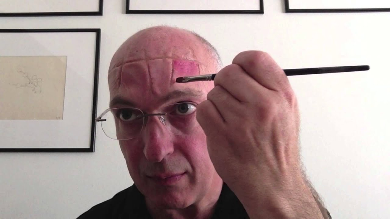 Image result for rigid collodion