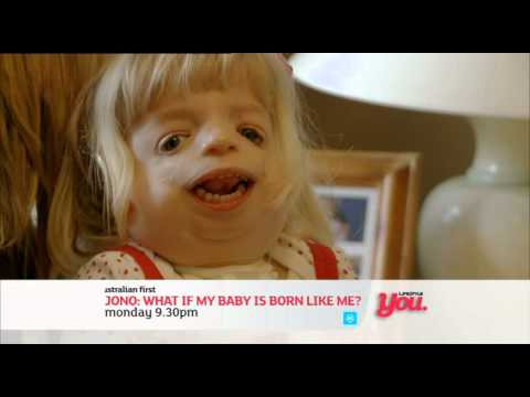 JONO - WHAT IF MY BABY IS BORN LIKE ME
