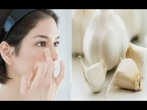 Cách dùng 1 củ tỏi tẩy sạch nốt ruồi không để lại sẹo mà chẳng cần đến spa