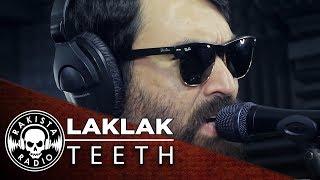 LAKLAK by Teeth | Rakista Live EP148