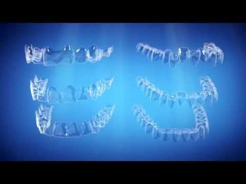 Straight Talk About Crooked Teeth (Version B) | Invisalign