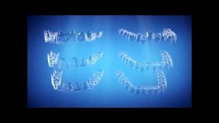 Straight Talk About Crooked Teeth | Invisalign