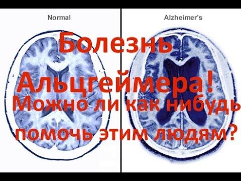 Болезнь Альцгеймера - симптомы, лечение, профилактика