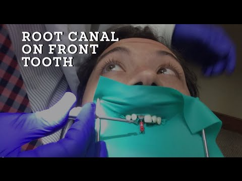 Root Canal Treatment Demonstration  A how to procedure on Front Tooth in HD