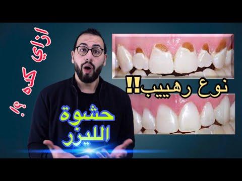 🥇شرح طريقة وضع حشو الليزر في الاسنان( الحشو الذي احدث طفرة في طب الاسنان ) مميزاته وعيوبه composite