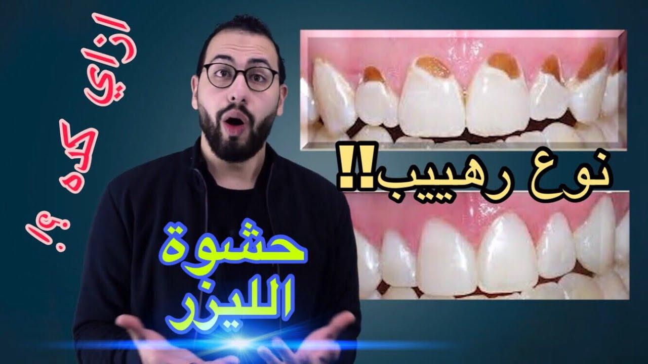 شرح طريقة وضع الحشوات التجميلية علي الاسنان الحشو الذي احدث طفرة في طب الاسنان Composite Youtube