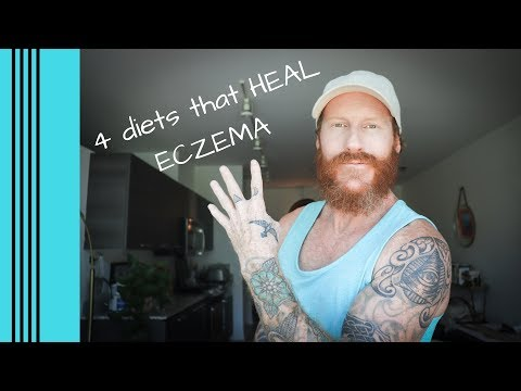 the-4-best-diets-for-healing-eczema.