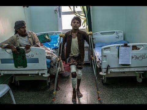 قصف الحوثي يطال -مستشفى 22 مايو-  - نشر قبل 2 ساعة