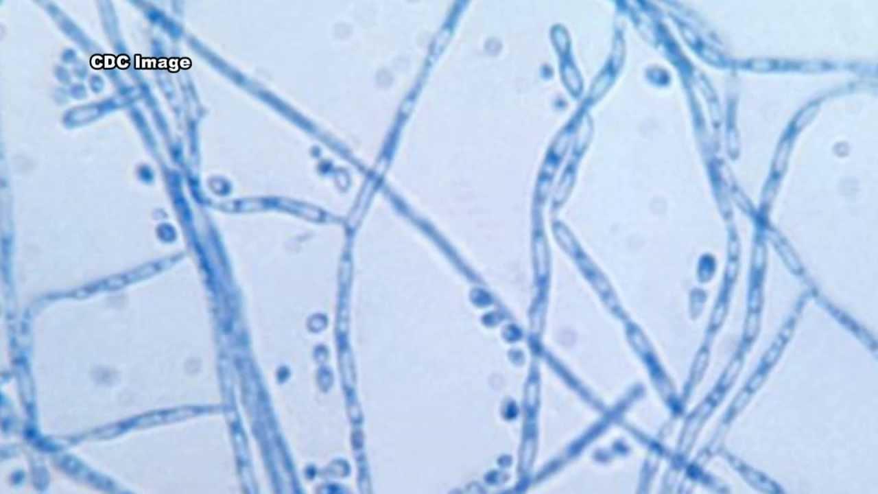 Cladosporium: An Indoo...