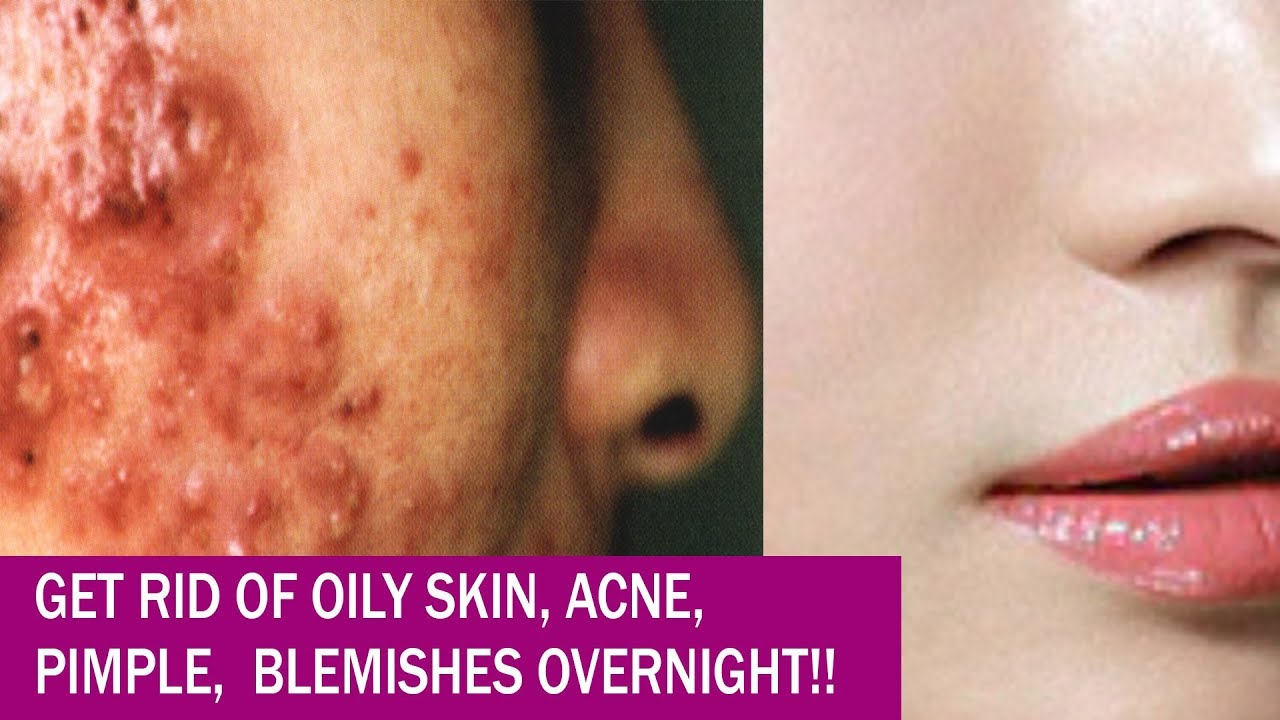 Hw 2 get rid of pimples