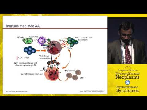Hypocellular MDS vs. aplastic anemia - Diagnosis and therapy