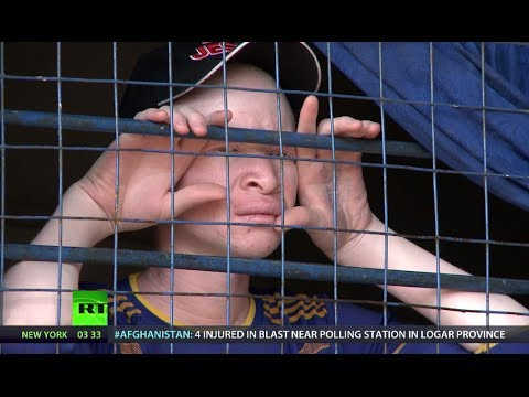 Fear & Loathing: Albino Africans Survival in Tanzania (RT Do