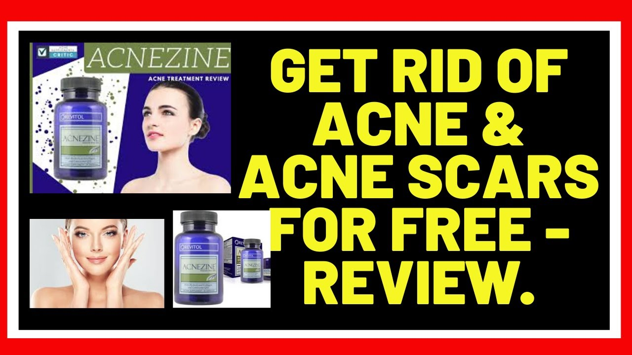 Get Rid Of Acne Acne Scars For Free Review Youtube