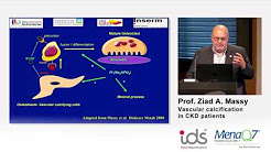 hqdefault - Pathophysiology Of Vascular Calcification In Chronic Kidney Disease