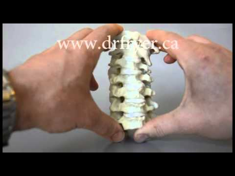 Cervical Instability Model by Dr. Jerome Fryer (Chiropractor)