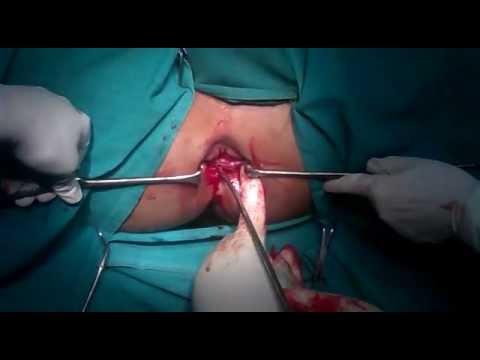Chronic Anal fissure-MAD+Fissurectomy+Partial Sphincterotomy+Haemrrhoidectomy-Dr Narotam Dewan