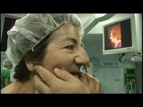 Rinoplastia: Cirugía Triple   Doctor Vidal