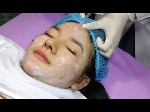 take-care-beauty-face-clinic/put-some-medical-in-the-face/blackheads-removal