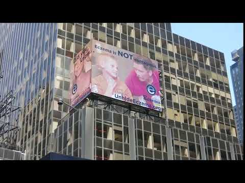 Unhide Eczema Times Square Billboard