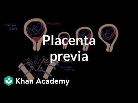 Placenta previa | Reproductive system physiology | NCLEX-RN | Khan Academy