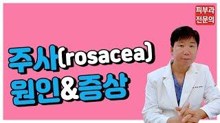 주사(rosacea) - 주사의 원인&증상[명동…