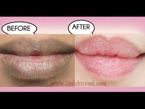 "Thumbnail: How To Get Natural Pink Lips FAST Using Only 2 INGREDIENTS (""Home Remedies"")"