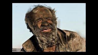 תכירו את האיש שלא התקלח 60 שנה... (לא תאמינו איך הוא נראה)