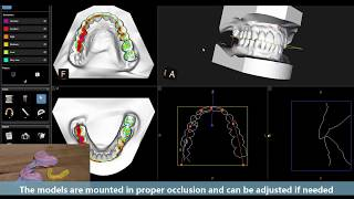 Carestream Dental CBCT Impression Scanning with the CS 9300 and CS 8100 3D Families