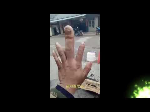 BIZARNO : Čovjek sa najvećim srednjim prstom na svjeth