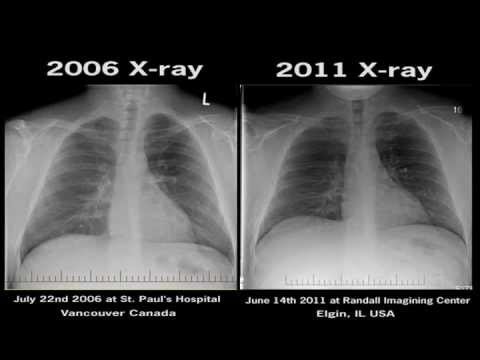Chest X-Ray Electronic Cigarettes Before and After Smoking Health harmful