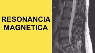 Resonancia Magnetica Lumbar Para Diagnosis de Hernia de Disco (Causa de Ciatica)
