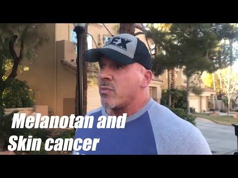 "RHINO's RHANTS - TEN TALKS:  ""Melanotan and Skin Cancer"""