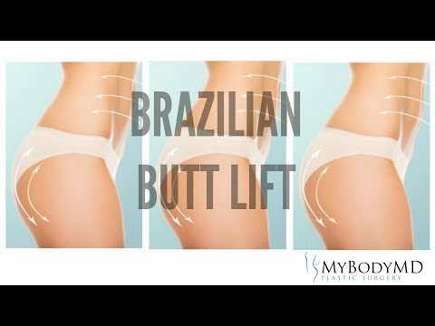 MyBodyMD - Brazilian Butt Lift in Houston, Texas - Dr. Rafi S. Bidros