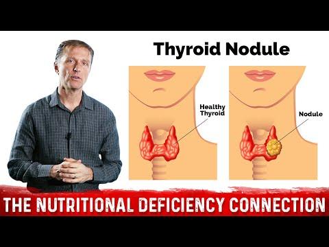What's Behind Thyroid Nodules?