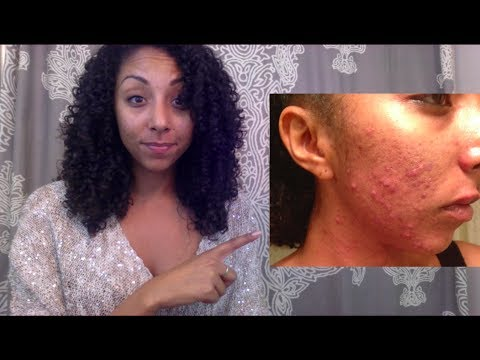 how-i-got-clear-skin-with-birth-control-|-biancareneetoday