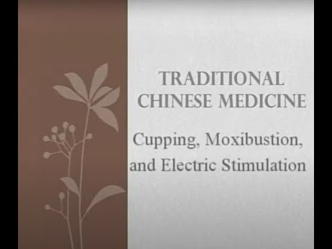 Cupping, Moxa and Electric Stimulation - Traditional Chinese Medicine and Acupuncture